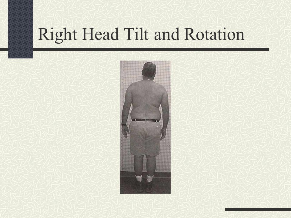 Right Head Tilt and Rotation