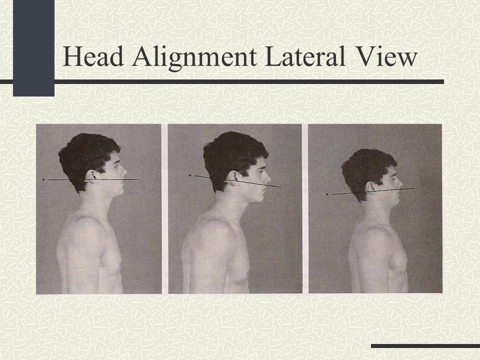 Head Alignment Lateral View