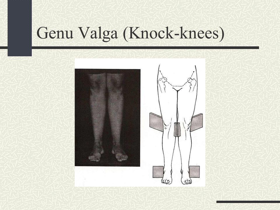 Genu Valga (Knock-knees)