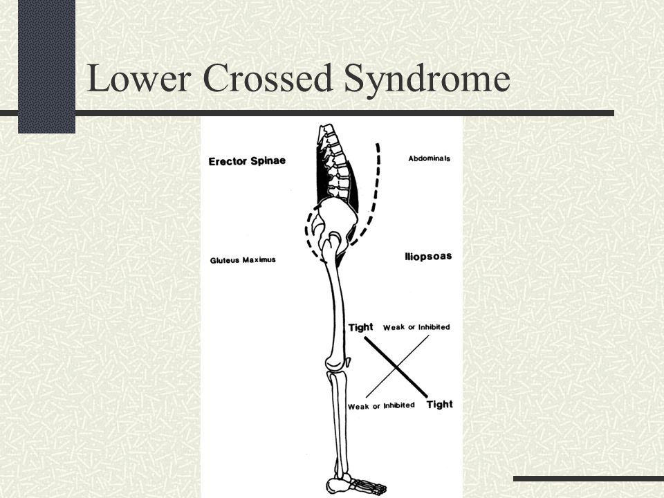 Lower Crossed Syndrome