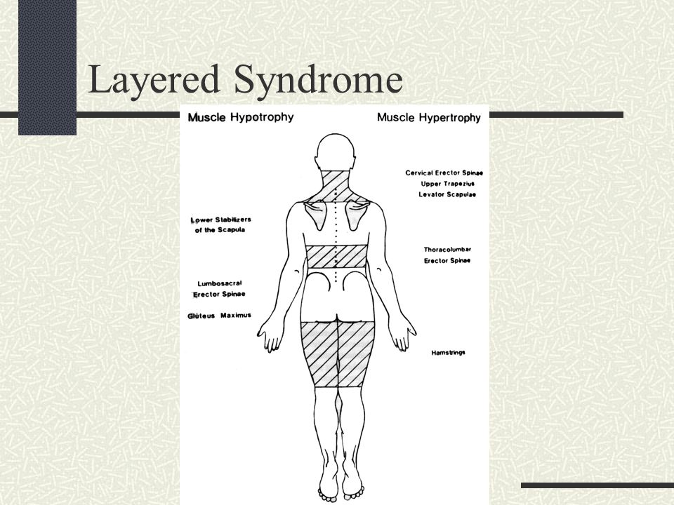 Layered Syndrome