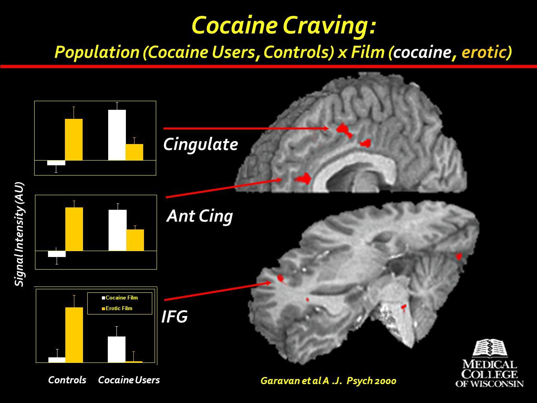 Cocaine Craving: Population (Cocaine Users, Controls) x Film (cocaine, erotic) Cingulate. Ant Cing.