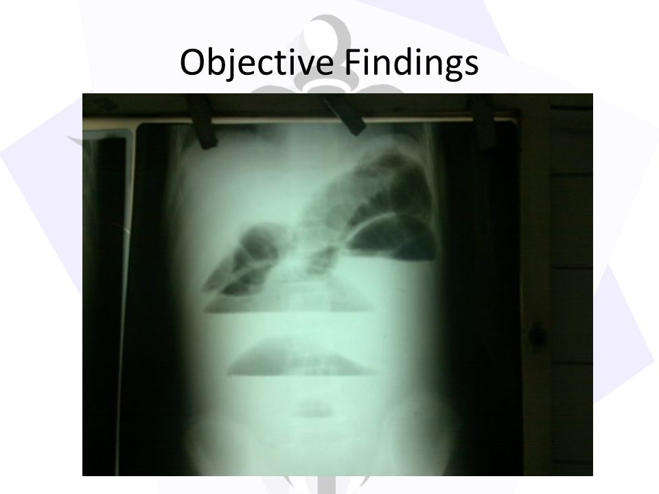 Objective Findings