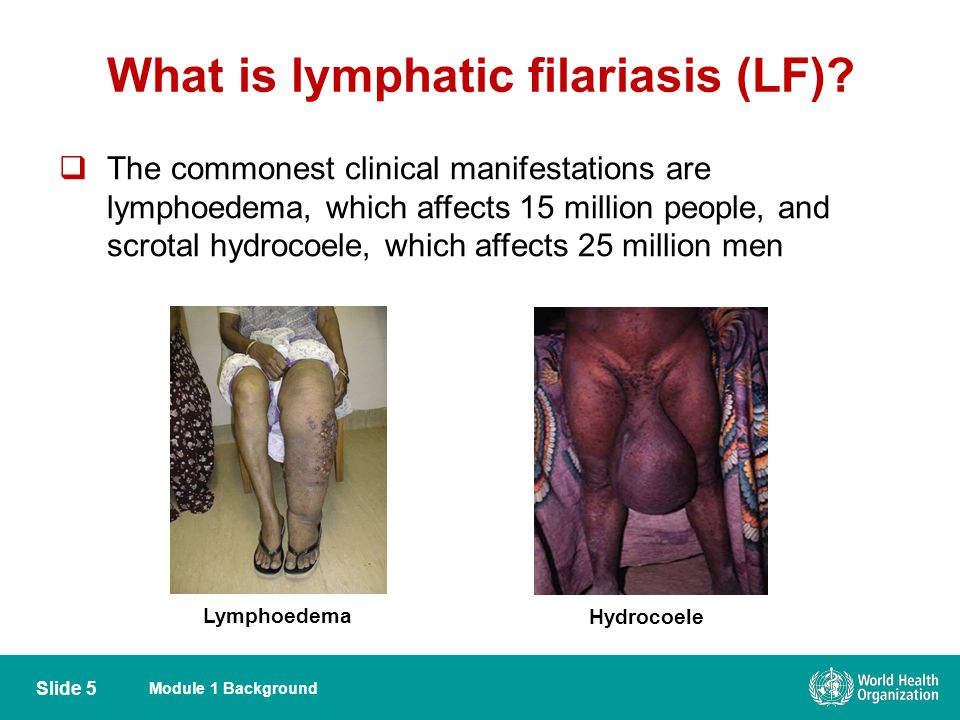 What is lymphatic filariasis (LF)