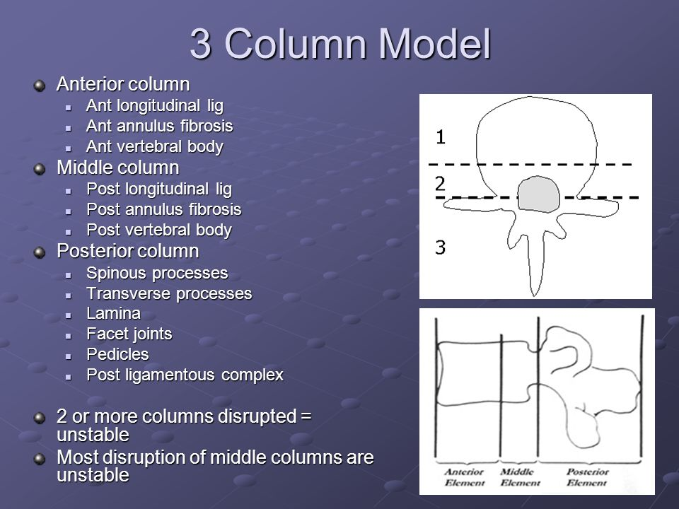 3 Column Model Anterior column Middle column Posterior column