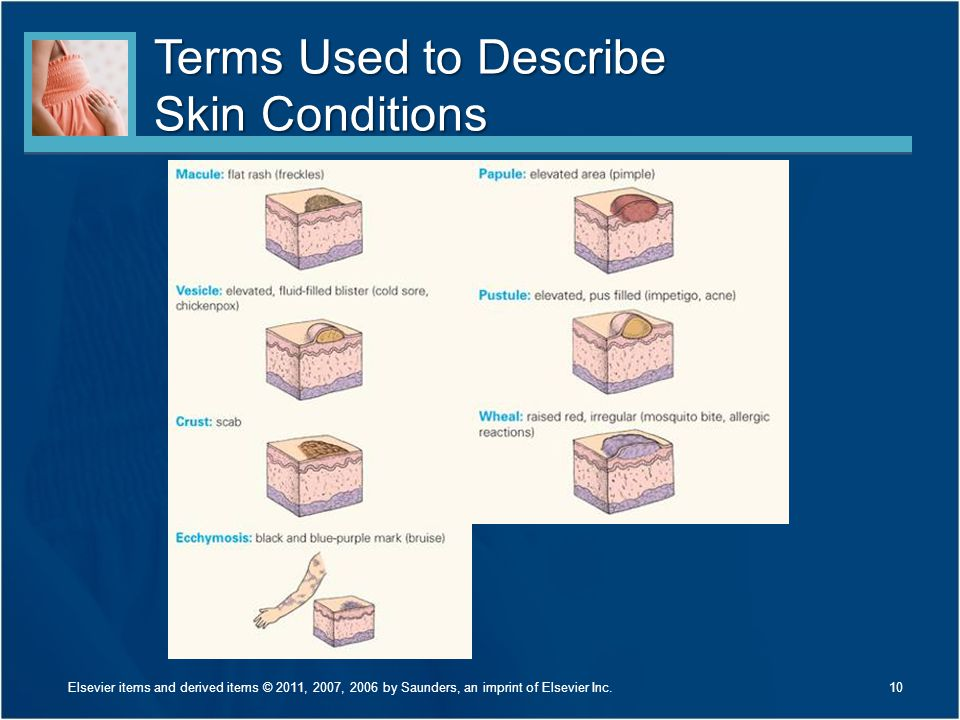 Terms Used to Describe Skin Conditions