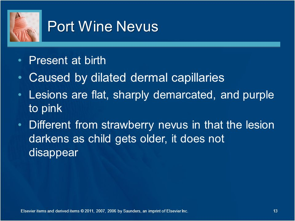 Port Wine Nevus Caused by dilated dermal capillaries Present at birth