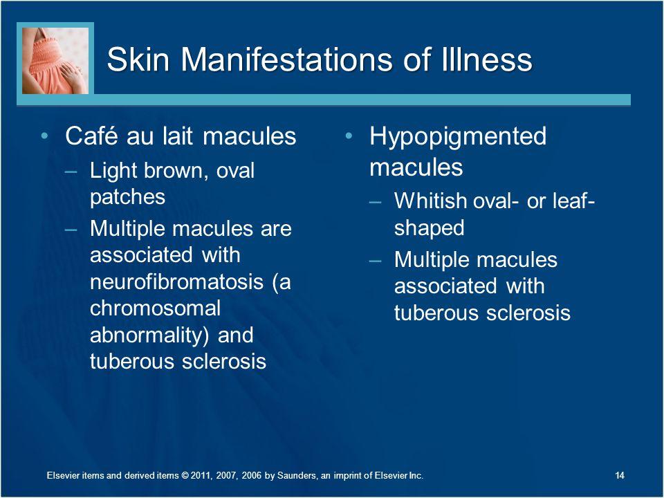 Skin Manifestations of Illness
