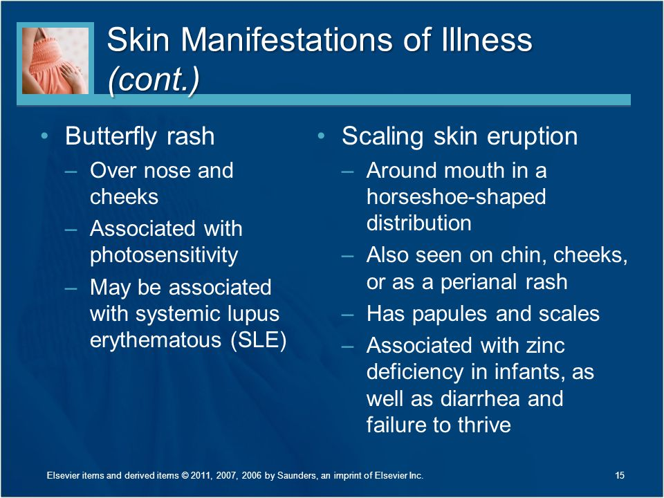 Skin Manifestations of Illness (cont.)