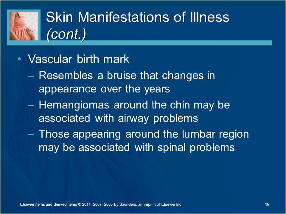 Skin Manifestations of Illness (cont.)