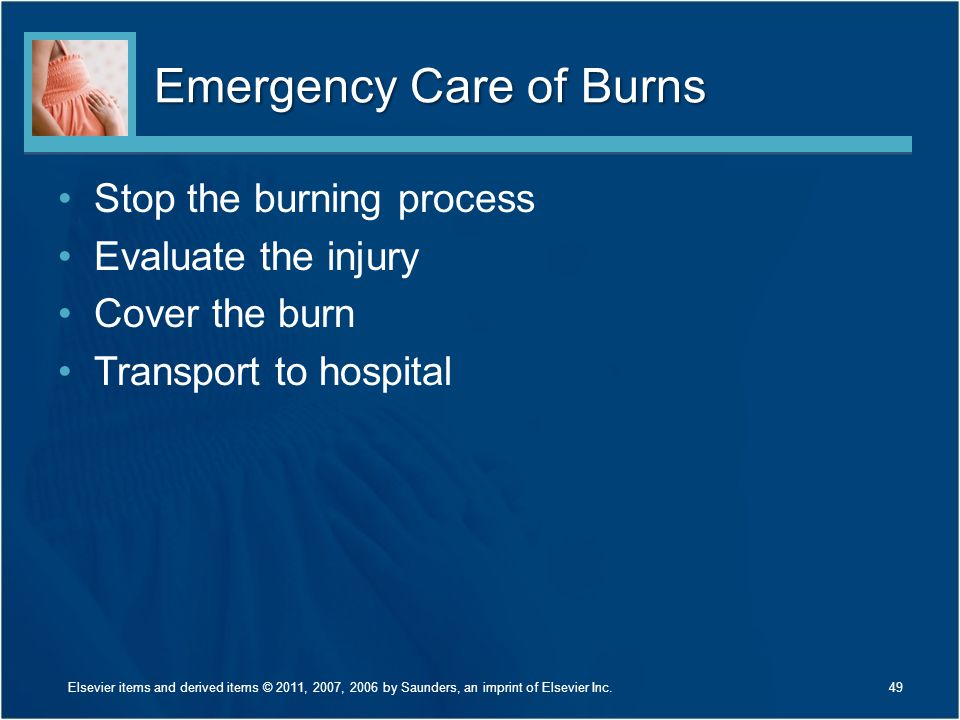 Emergency Care of Burns