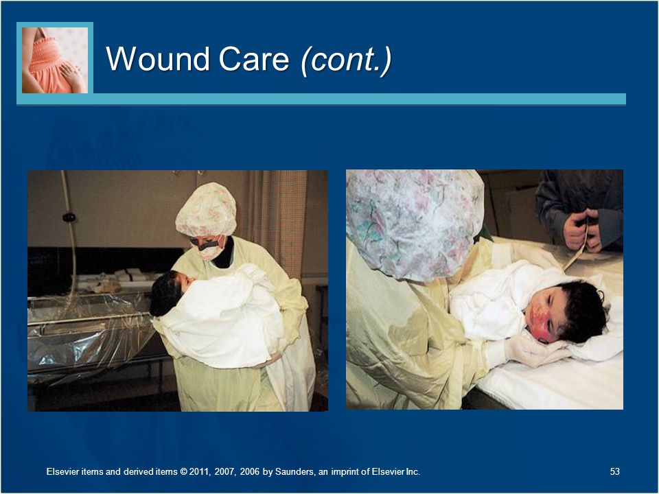 Wound Care (cont.) Discuss Figure 30-17 on page 705.