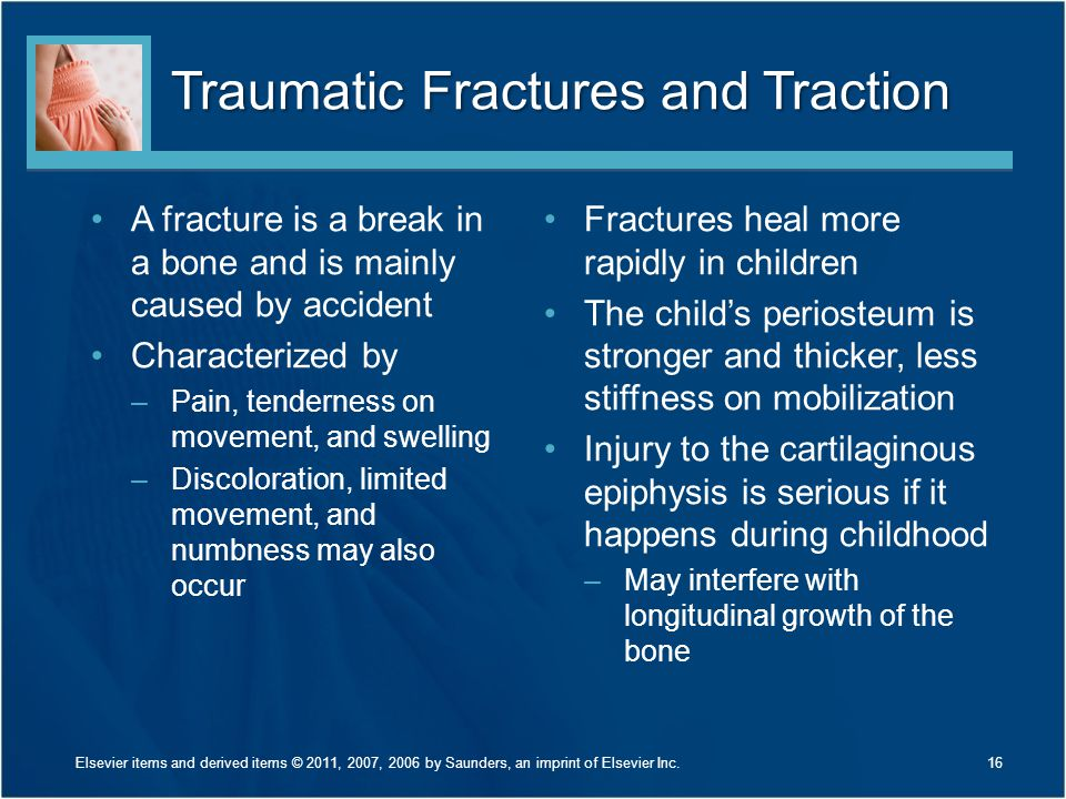Traumatic Fractures and Traction
