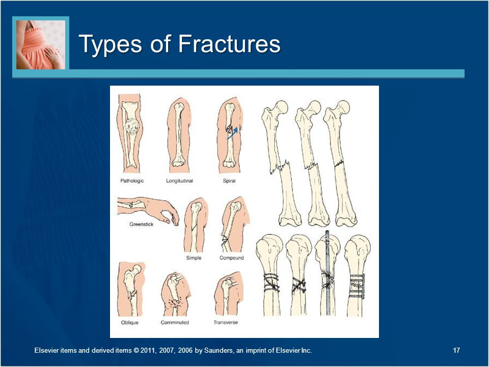 Types of Fractures Discuss the fractures listed in Figure 24-2 on page 565. Give an example of how each might occur.