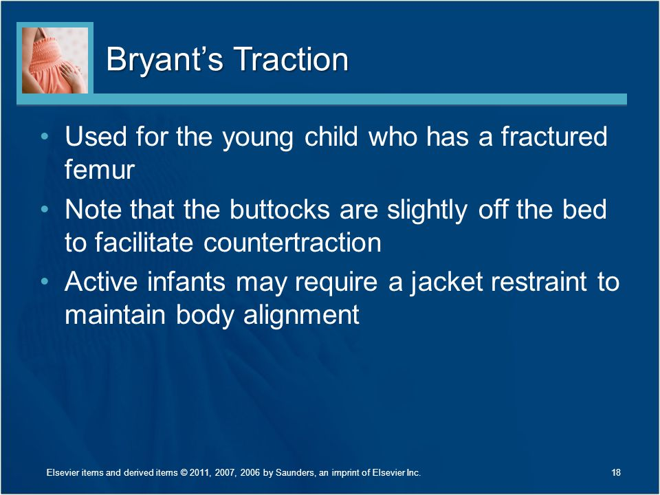 Bryant's Traction Used for the young child who has a fractured femur