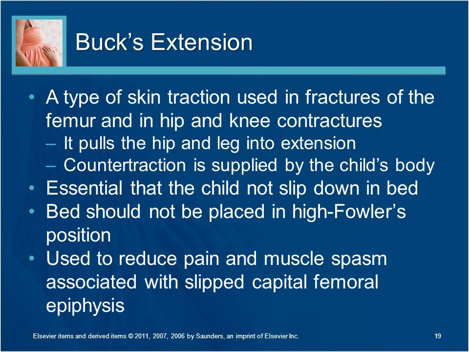 Buck's Extension A type of skin traction used in fractures of the femur and in hip and knee contractures.