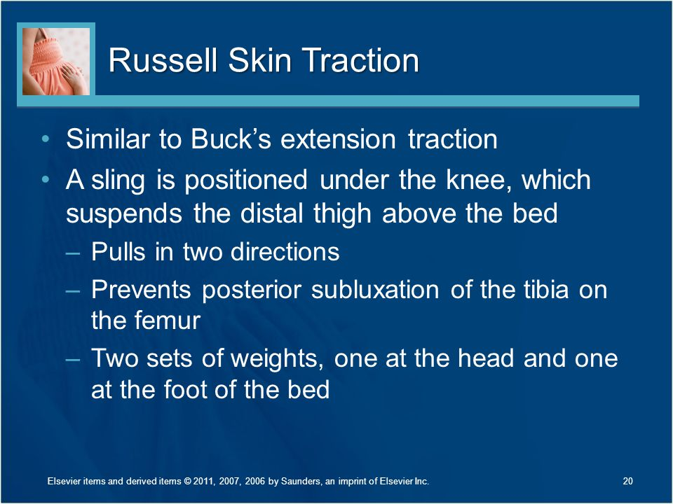 Russell Skin Traction Similar to Buck's extension traction