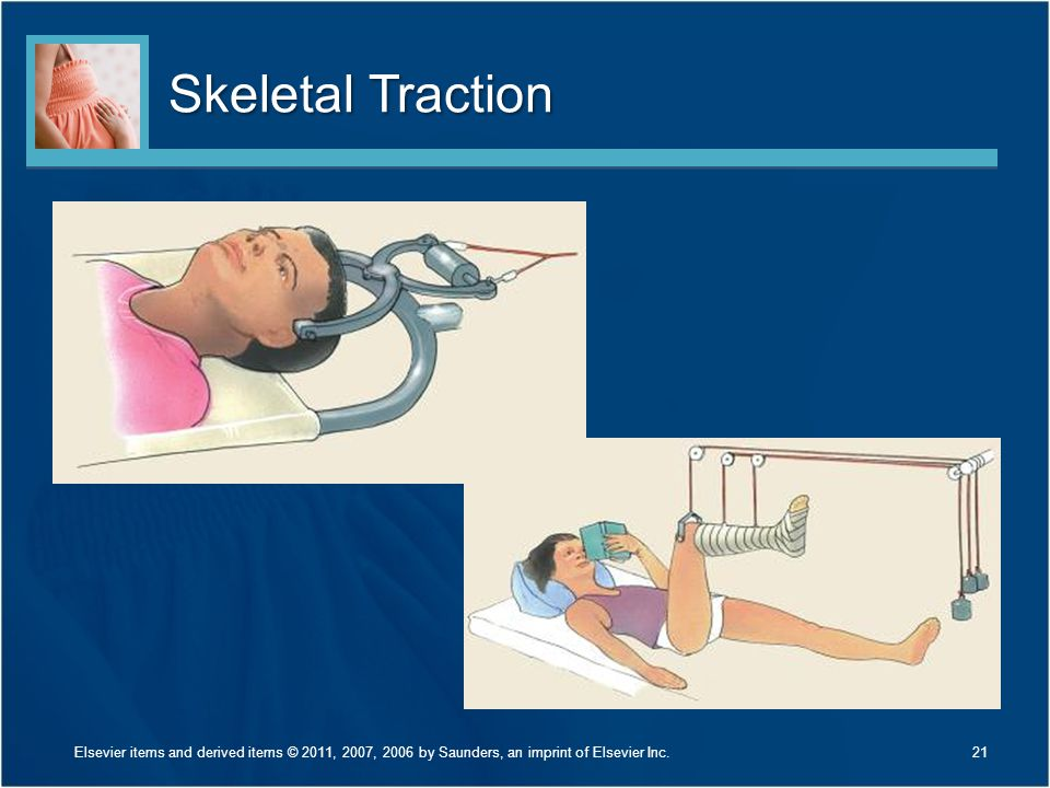 Skeletal Traction What methods are used to prevent infection with these types of traction