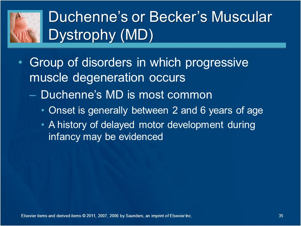 Duchenne's or Becker's Muscular Dystrophy (MD)