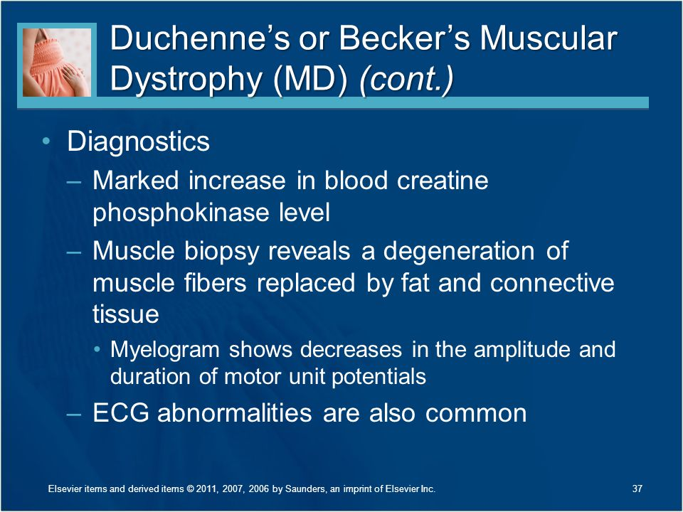 Duchenne's or Becker's Muscular Dystrophy (MD) (cont.)