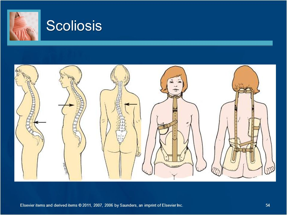 Scoliosis Discuss Figures 24-11 and 24-12 on page 575.