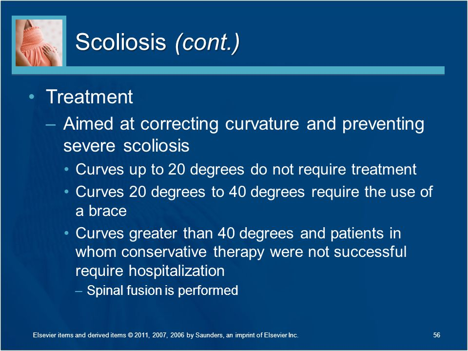 Scoliosis (cont.) Treatment
