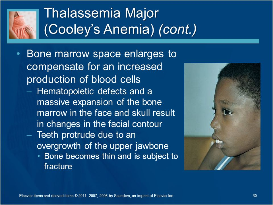 Thalassemia Major (Cooley's Anemia) (cont.)
