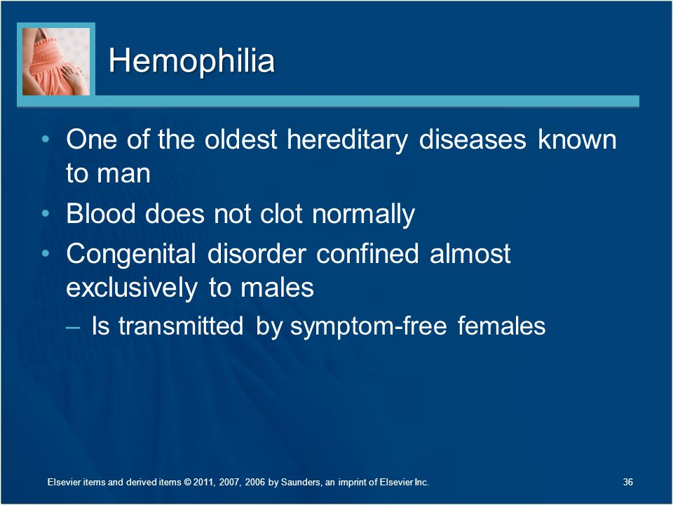 Hemophilia One of the oldest hereditary diseases known to man