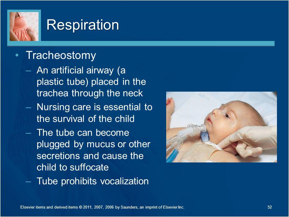 Respiration Tracheostomy