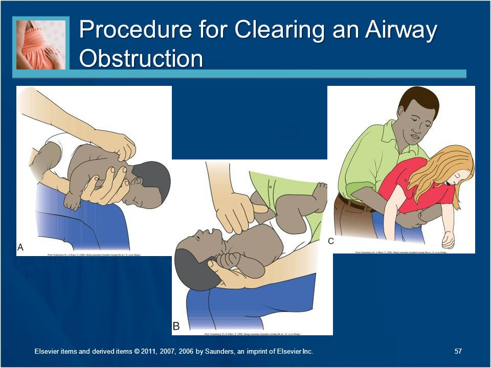 Procedure for Clearing an Airway Obstruction