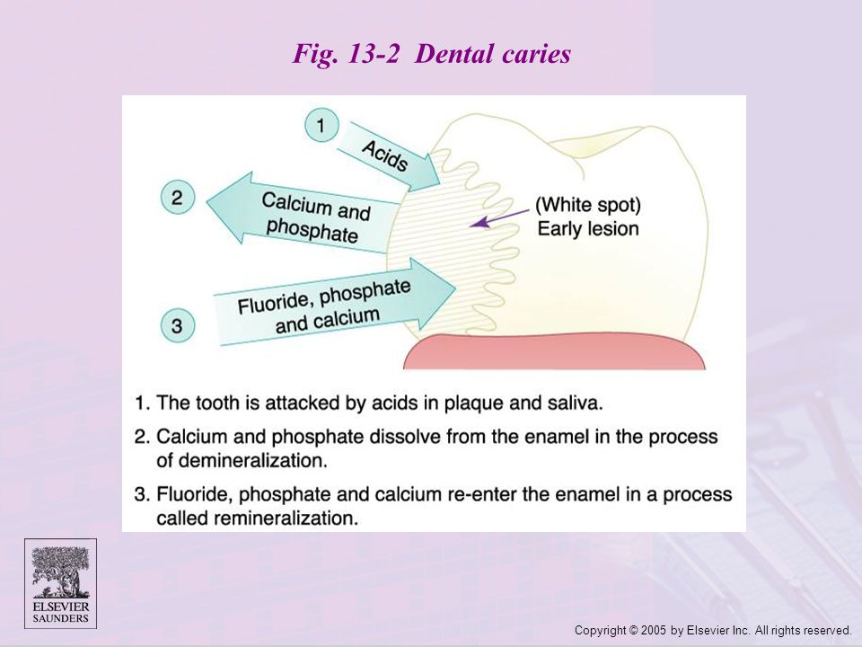 Fig. 13-2 Dental caries Copyright © 2005 by Elsevier Inc. All rights reserved.