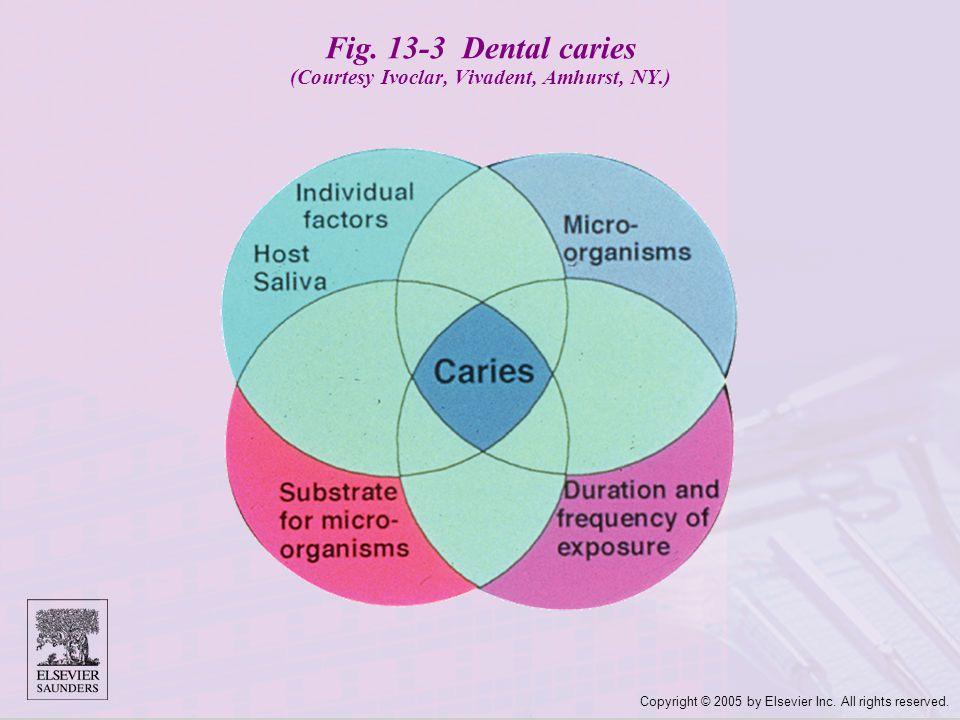 Fig. 13-3 Dental caries (Courtesy Ivoclar, Vivadent, Amhurst, NY.)