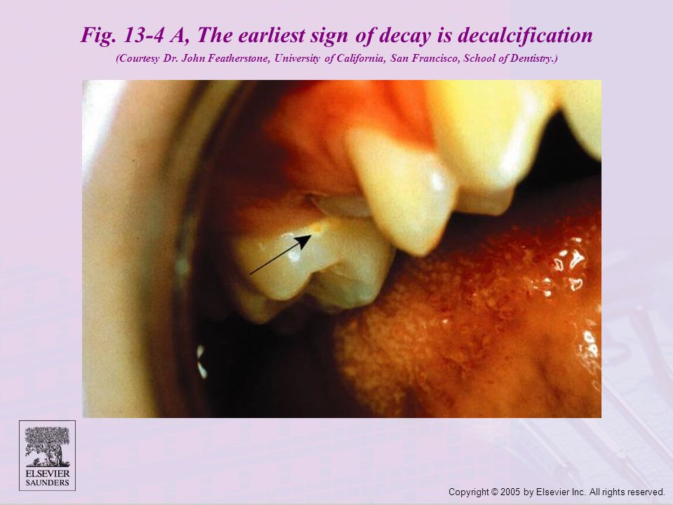 Fig. 13-4 A, The earliest sign of decay is decalcification (Courtesy Dr. John Featherstone, University of California, San Francisco, School of Dentistry.)