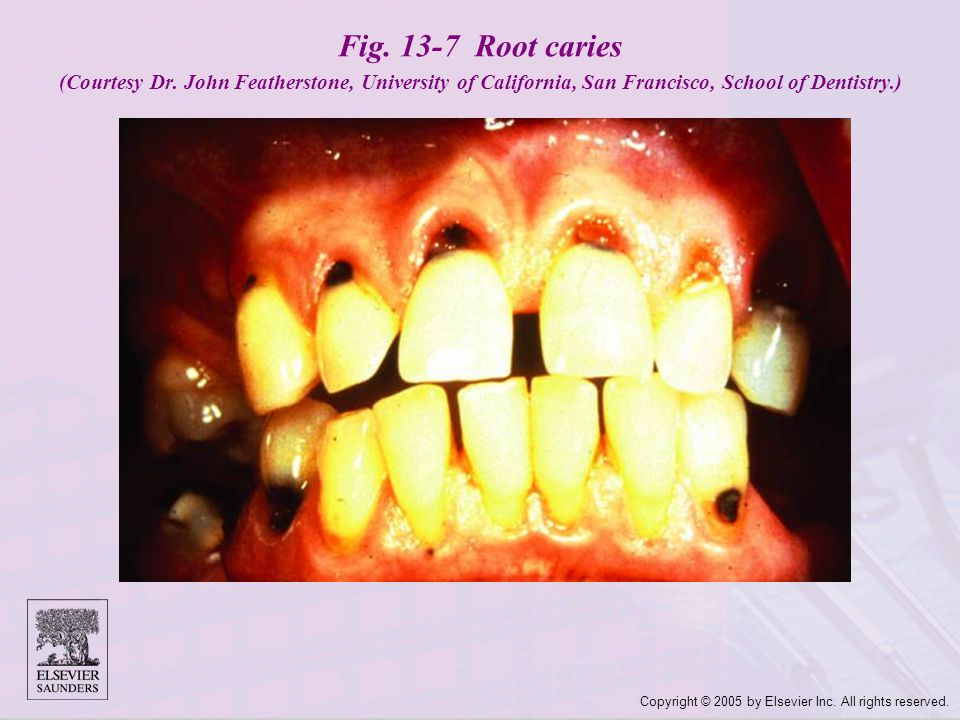 Fig. 13-7 Root caries (Courtesy Dr
