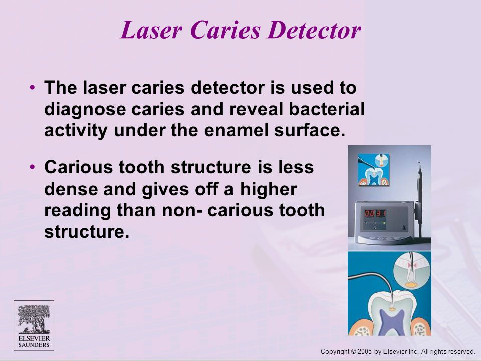 Laser Caries Detector The laser caries detector is used to diagnose caries and reveal bacterial activity under the enamel surface.