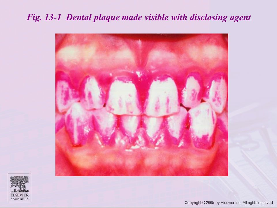 Fig. 13-1 Dental plaque made visible with disclosing agent