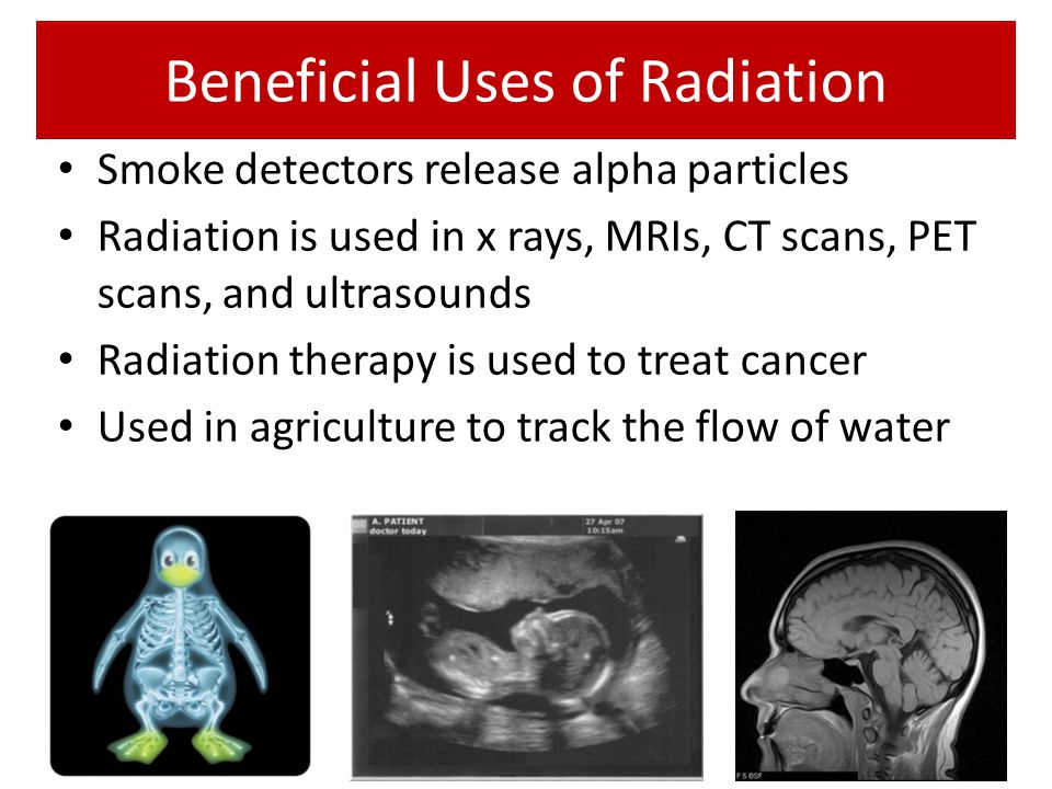 Beneficial Uses of Radiation