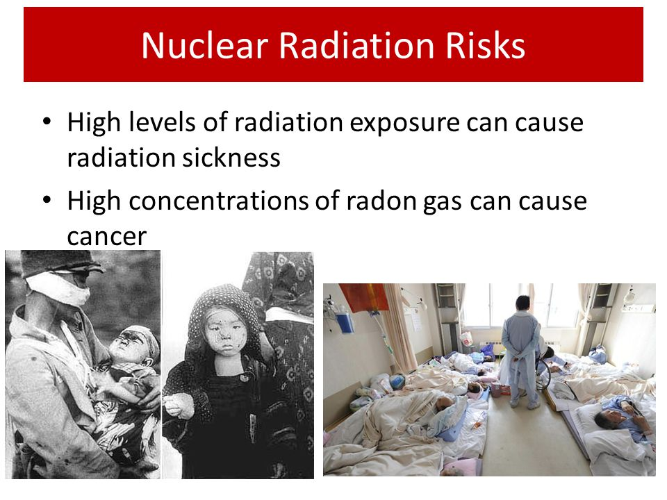 Nuclear Radiation Risks
