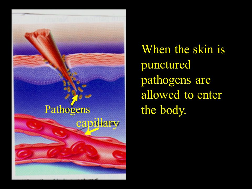 When the skin is punctured pathogens are allowed to enter the body.