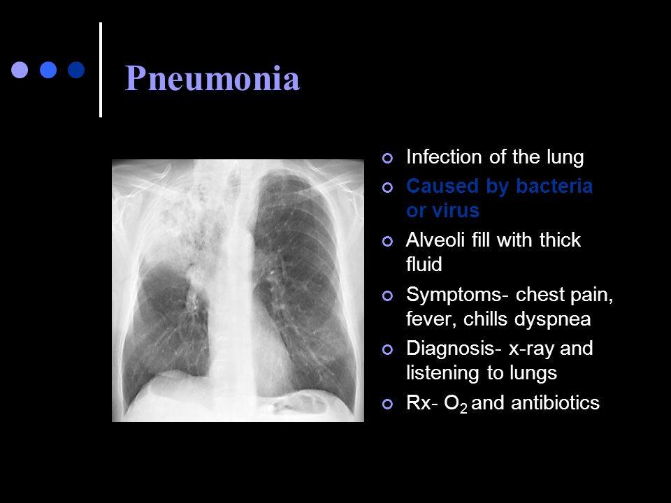 Pneumonia Infection of the lung Caused by bacteria or virus