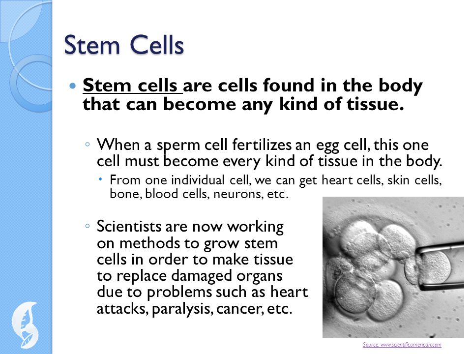 Stem Cells Stem cells are cells found in the body that can become any kind of tissue.