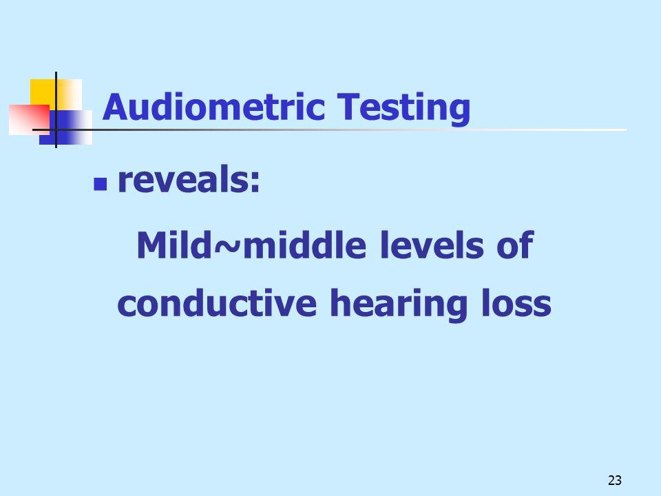 Audiometric Testing reveals: