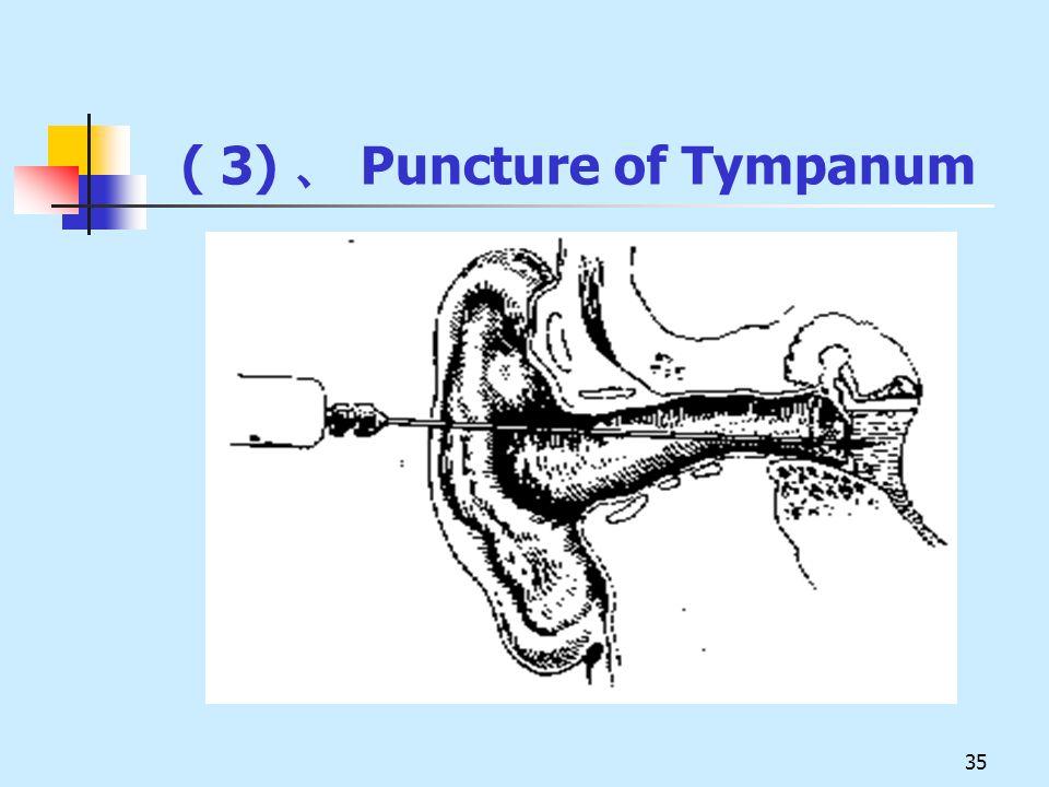 ( 3) 、 Puncture of Tympanum