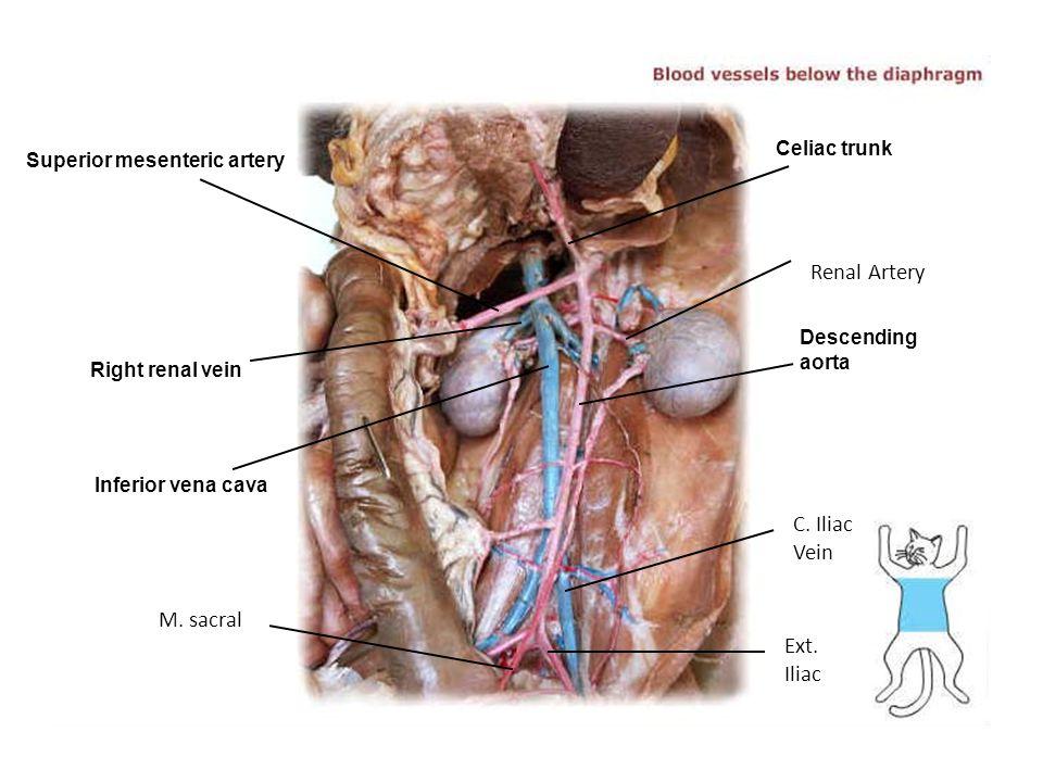 Renal Artery C. Iliac Vein M. sacral Ext. Iliac Celiac trunk