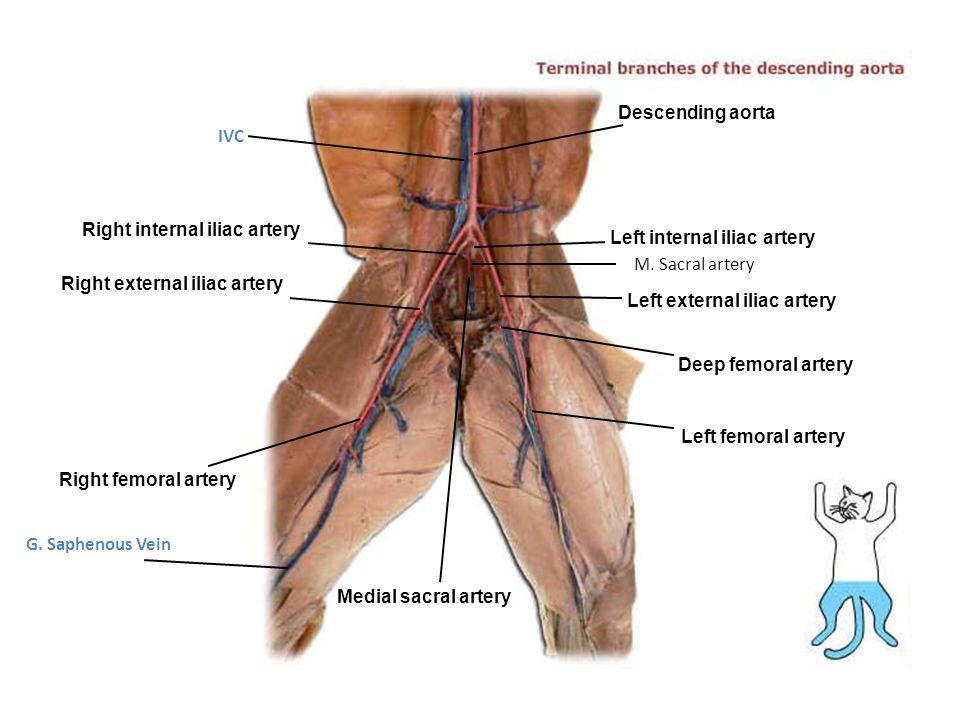 Descending aorta IVC. Right internal iliac artery. Left internal iliac artery. M. Sacral artery.