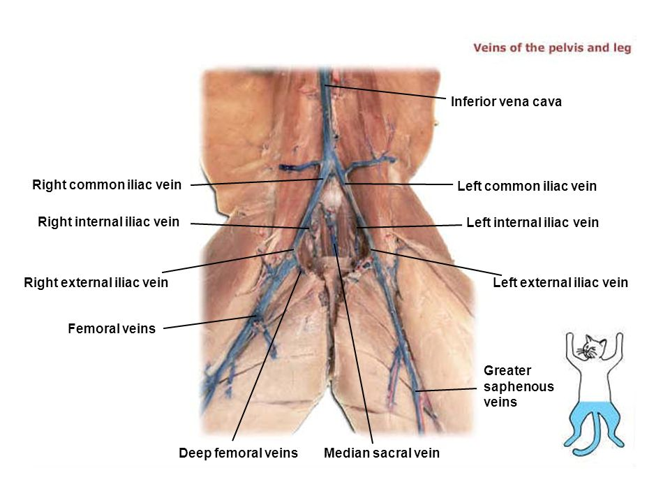 Inferior vena cava Right common iliac vein. Left common iliac vein. Right internal iliac vein. Left internal iliac vein.