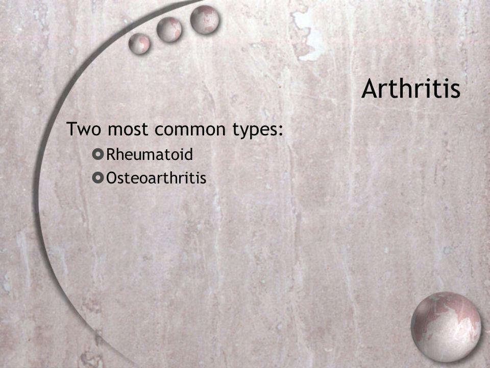Arthritis Two most common types: Rheumatoid Osteoarthritis