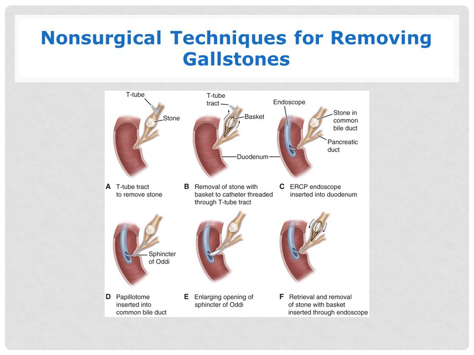 Nonsurgical Techniques for Removing Gallstones