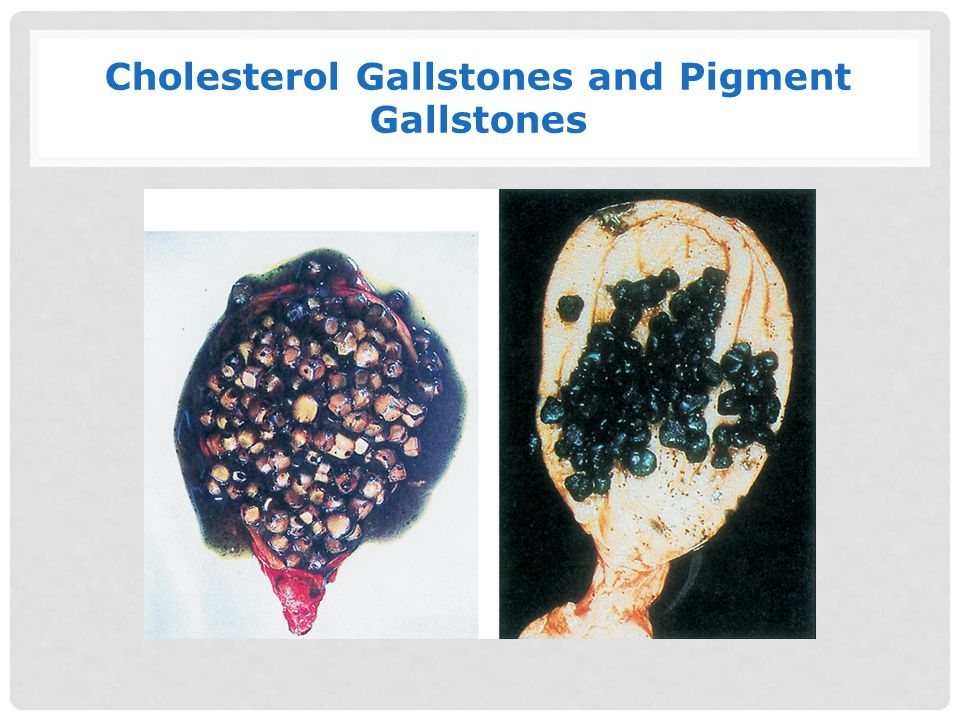 Cholesterol Gallstones and Pigment Gallstones
