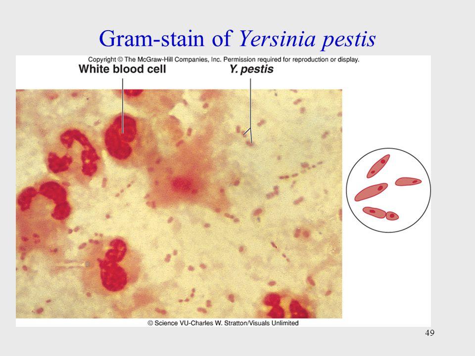 Gram-stain of Yersinia pestis
